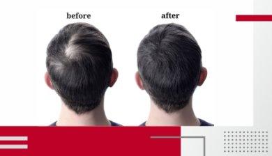 Πύκνωση μαλλιών